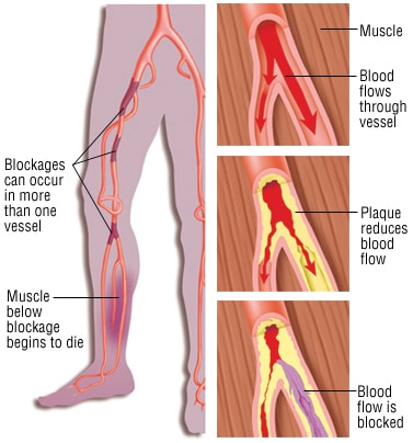 Peripheral Arterial Disease (PAD)