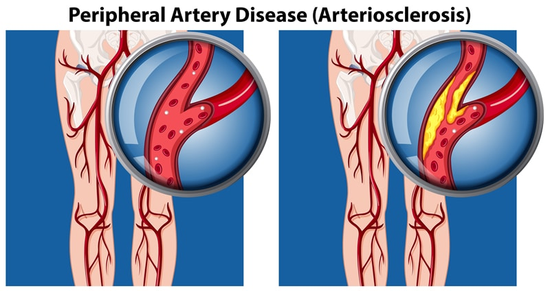Peripherial Arterial Disease
